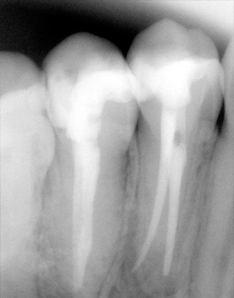 Root Canal Treatment - Nova Dental Costa Rica