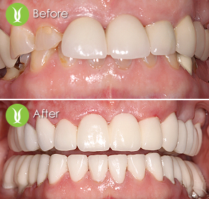 Restorations with Dental Implants and Full Zirconia Bridges