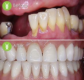 Fix Hybrid Dentures and Overdentures