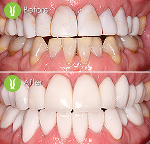 fFull mouth restoration with full porcelain crowns, veneers and zirconium crowns