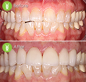 Full mouth restoration with full porcelain crowns, veneers and zirconium crowns