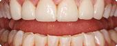 Dental Costa Rica